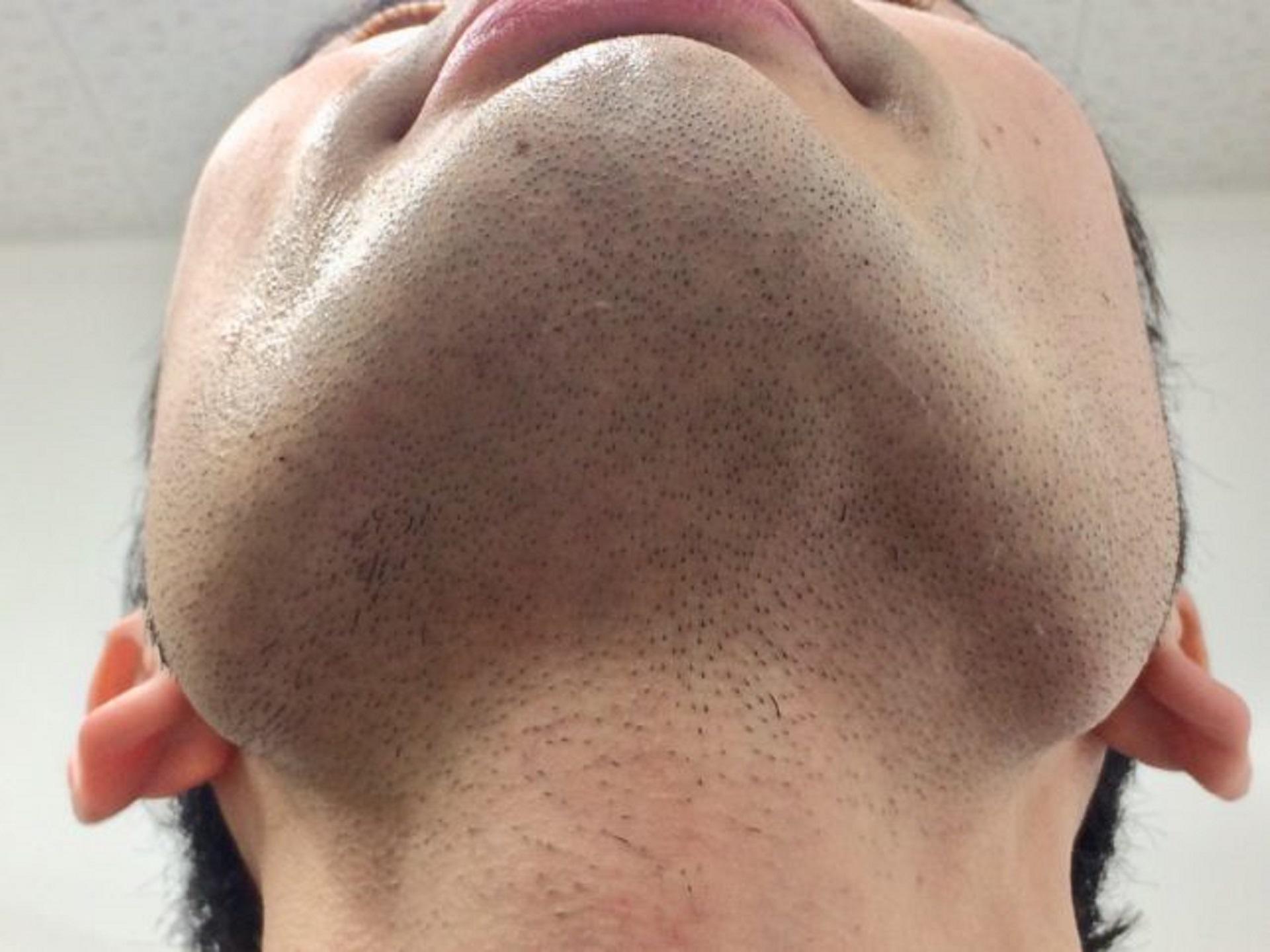 ひげ脱毛3回目の施術後