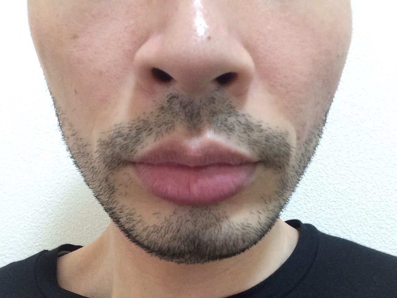 ひげ脱毛4回目の効果