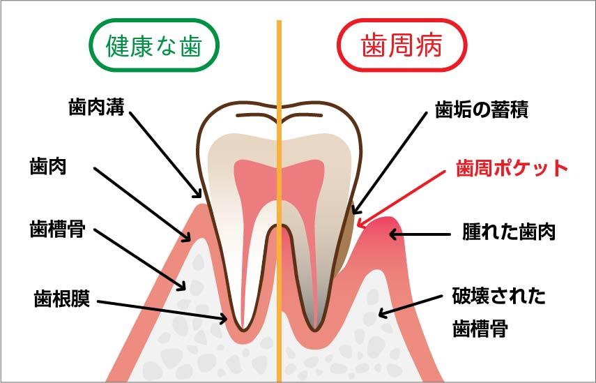 歯周病を説明するイラスト