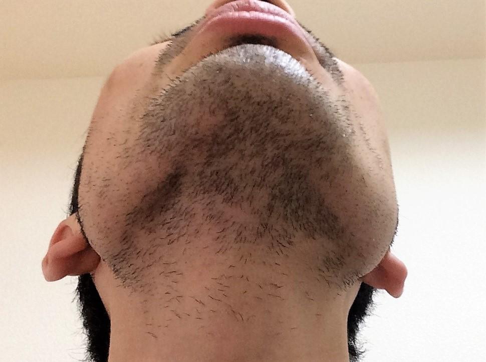 ひげ脱毛6回目の効果