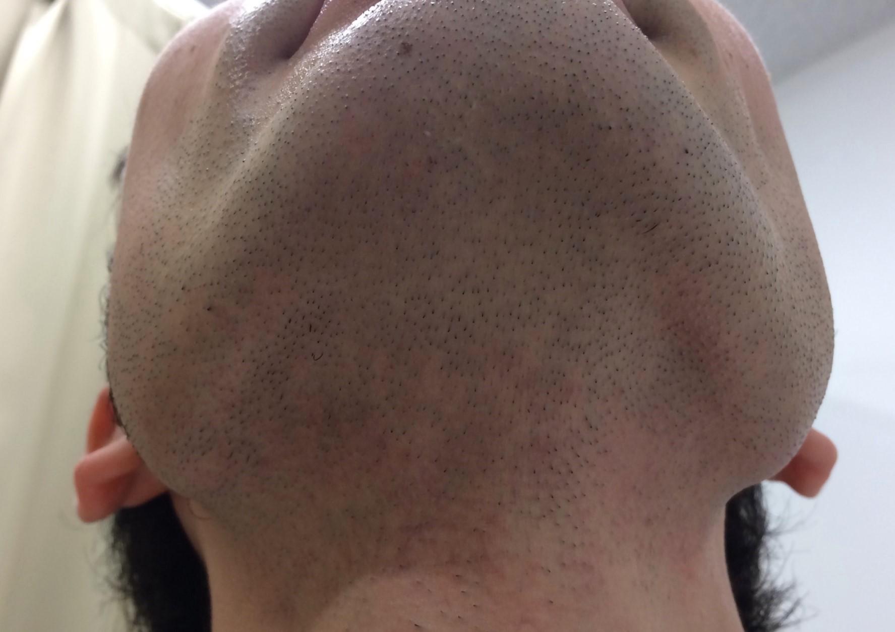 ひげ脱毛6回目の施術を受けた後の男性のあご下