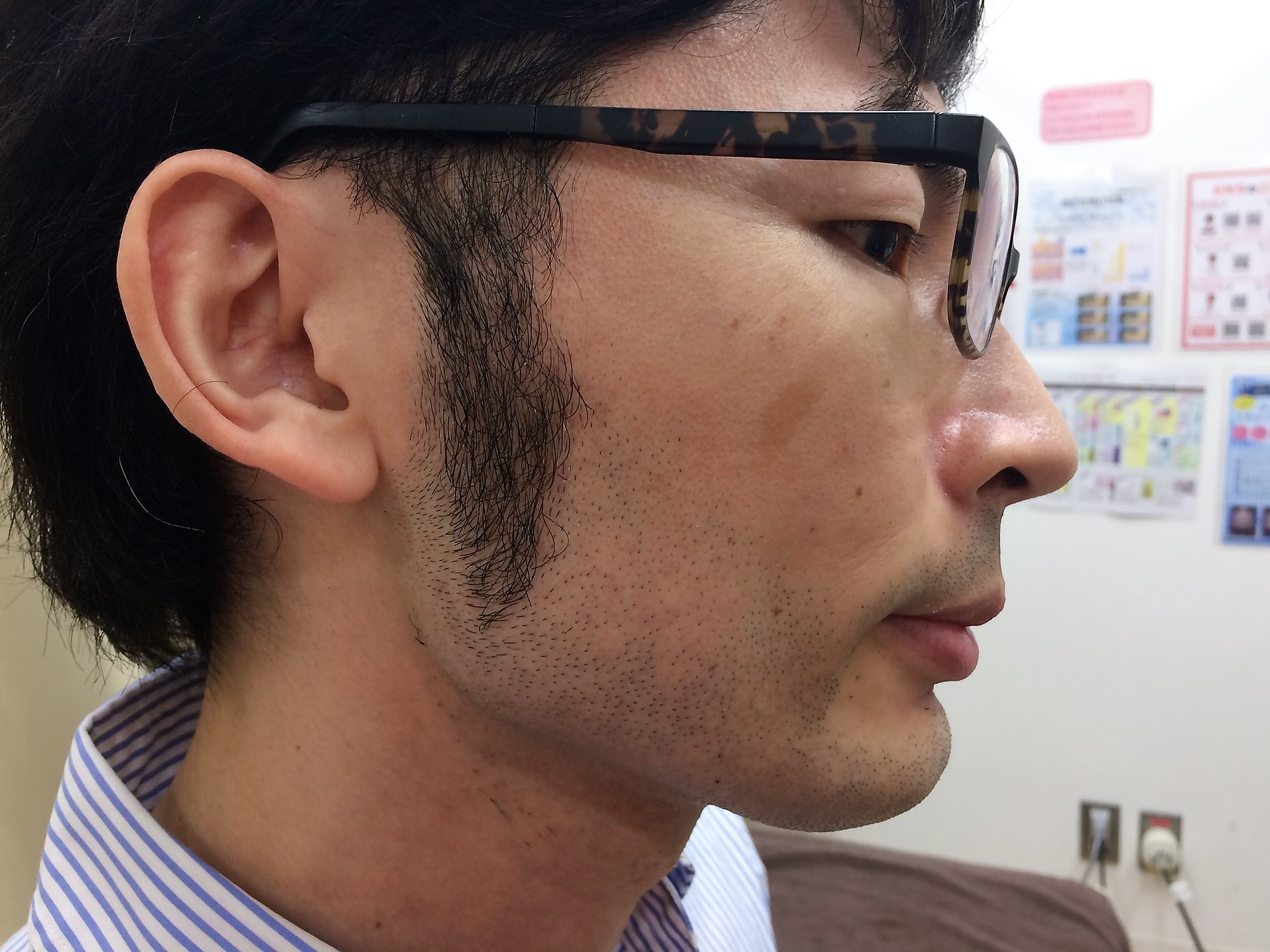ひげ脱毛施術前の右頬