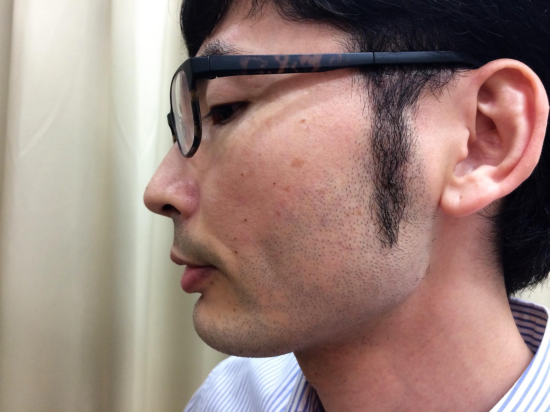 頬ひげ脱毛の施術前の左頬