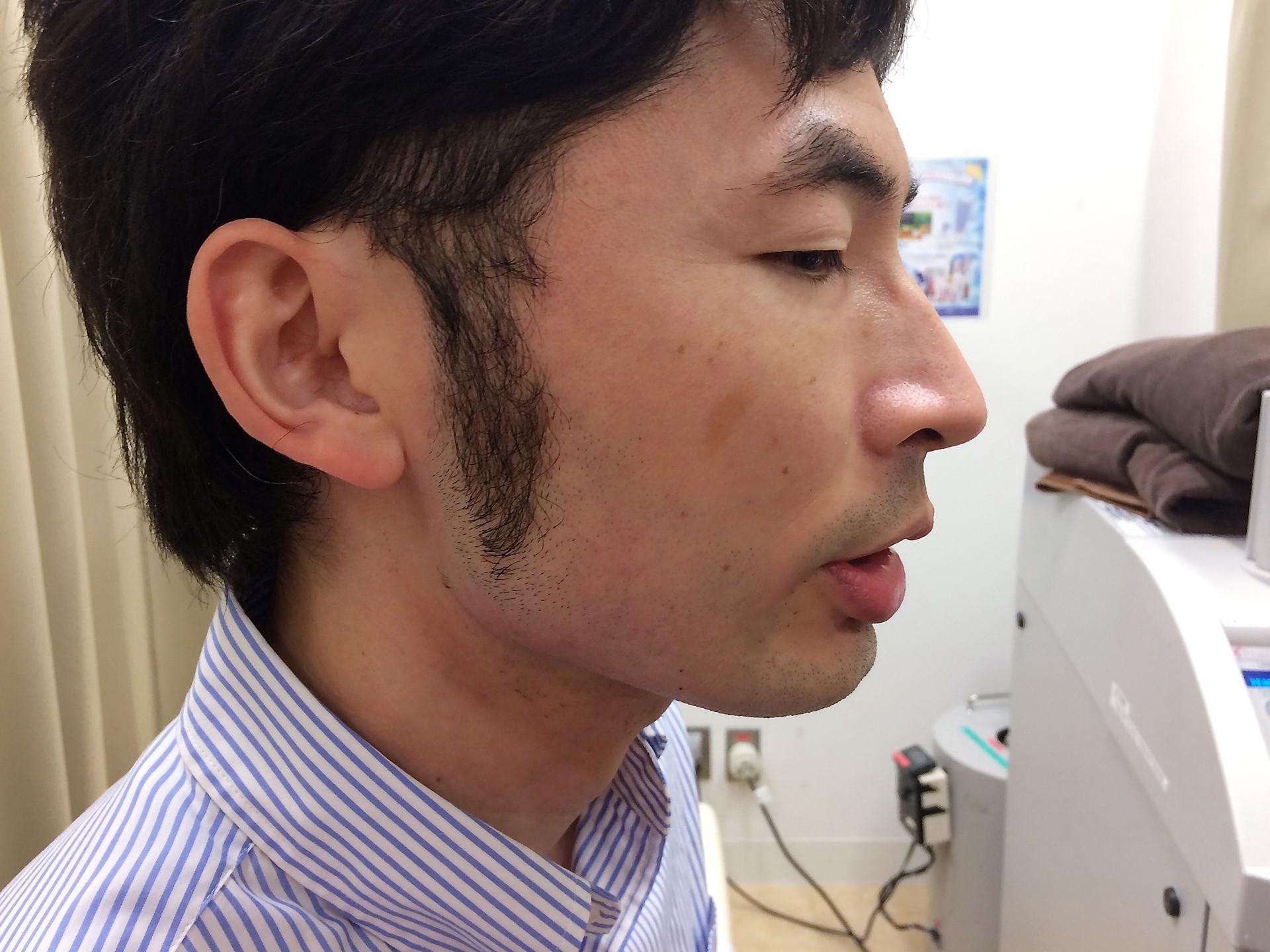 頬ひげ脱毛施術後の写真