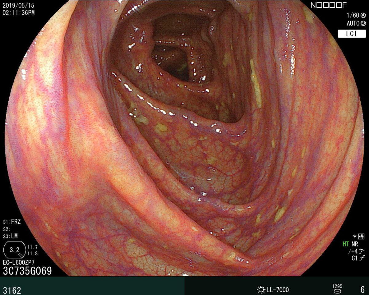 大腸内視鏡検査え確認された上行結腸の部分