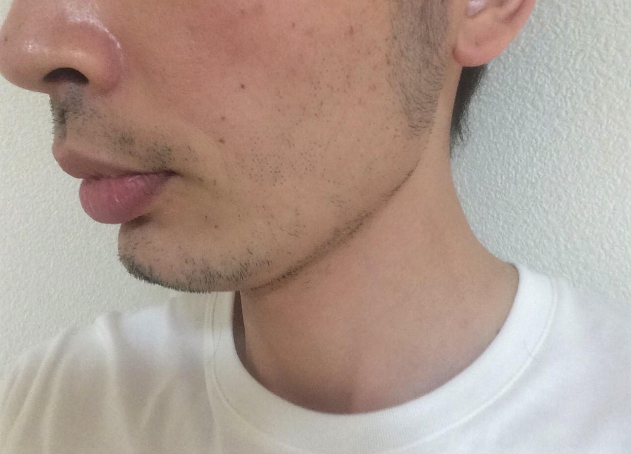 頬ひげ脱毛2回目の効果