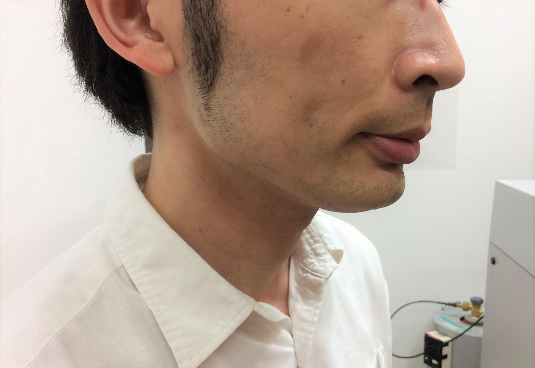頬ひげ脱毛3回目の施術前