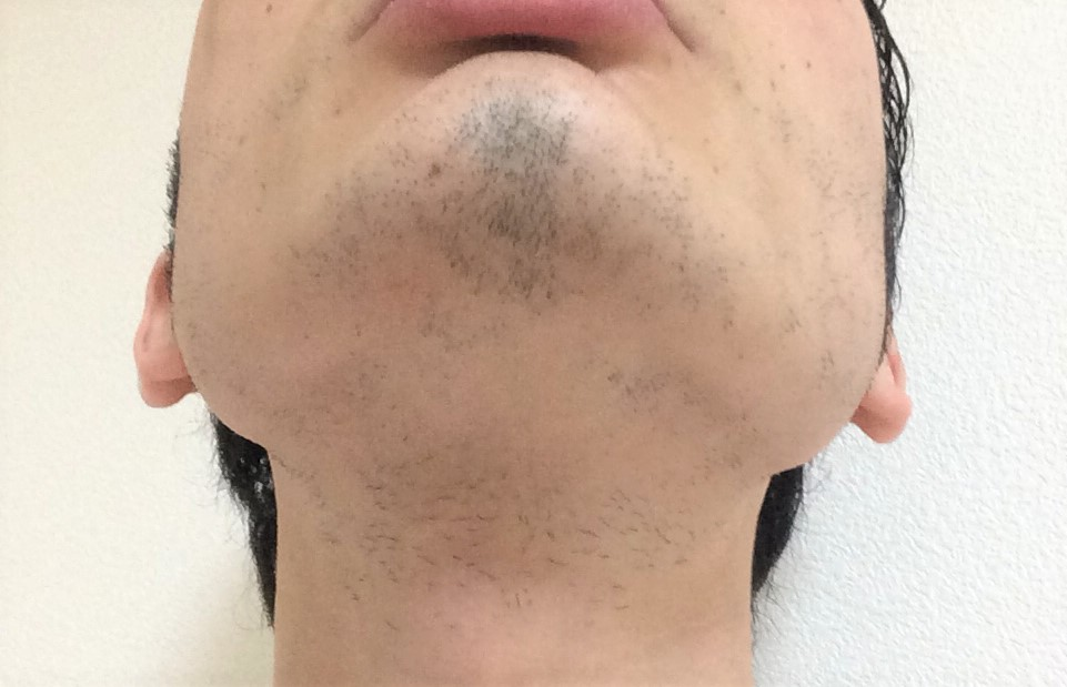 ひげ脱毛8回目の効果