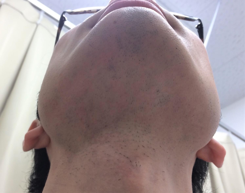 ひげ脱毛9回目の施術前2