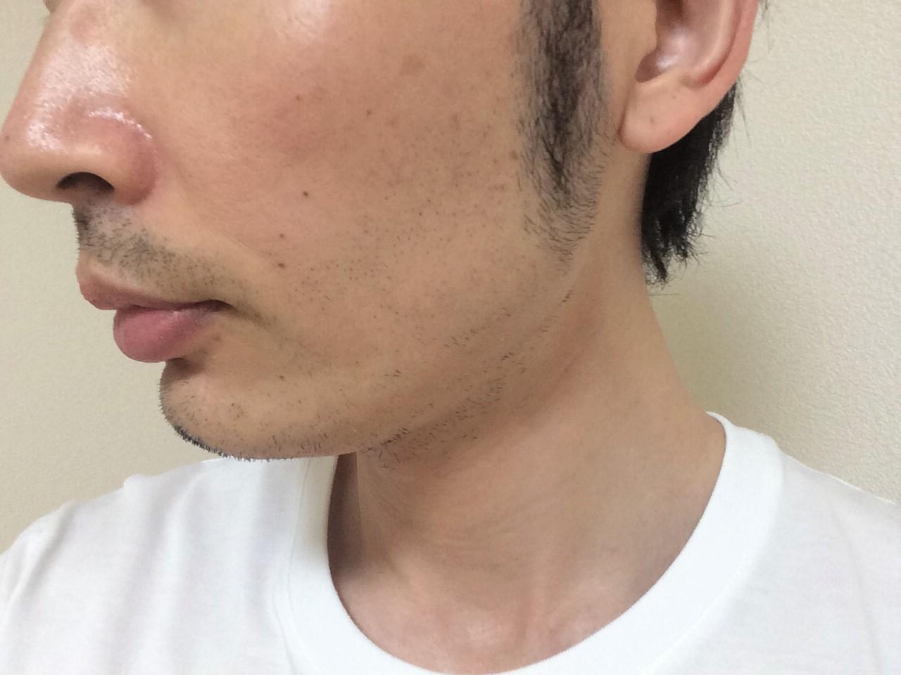 頬ひげ脱毛3回目の効果