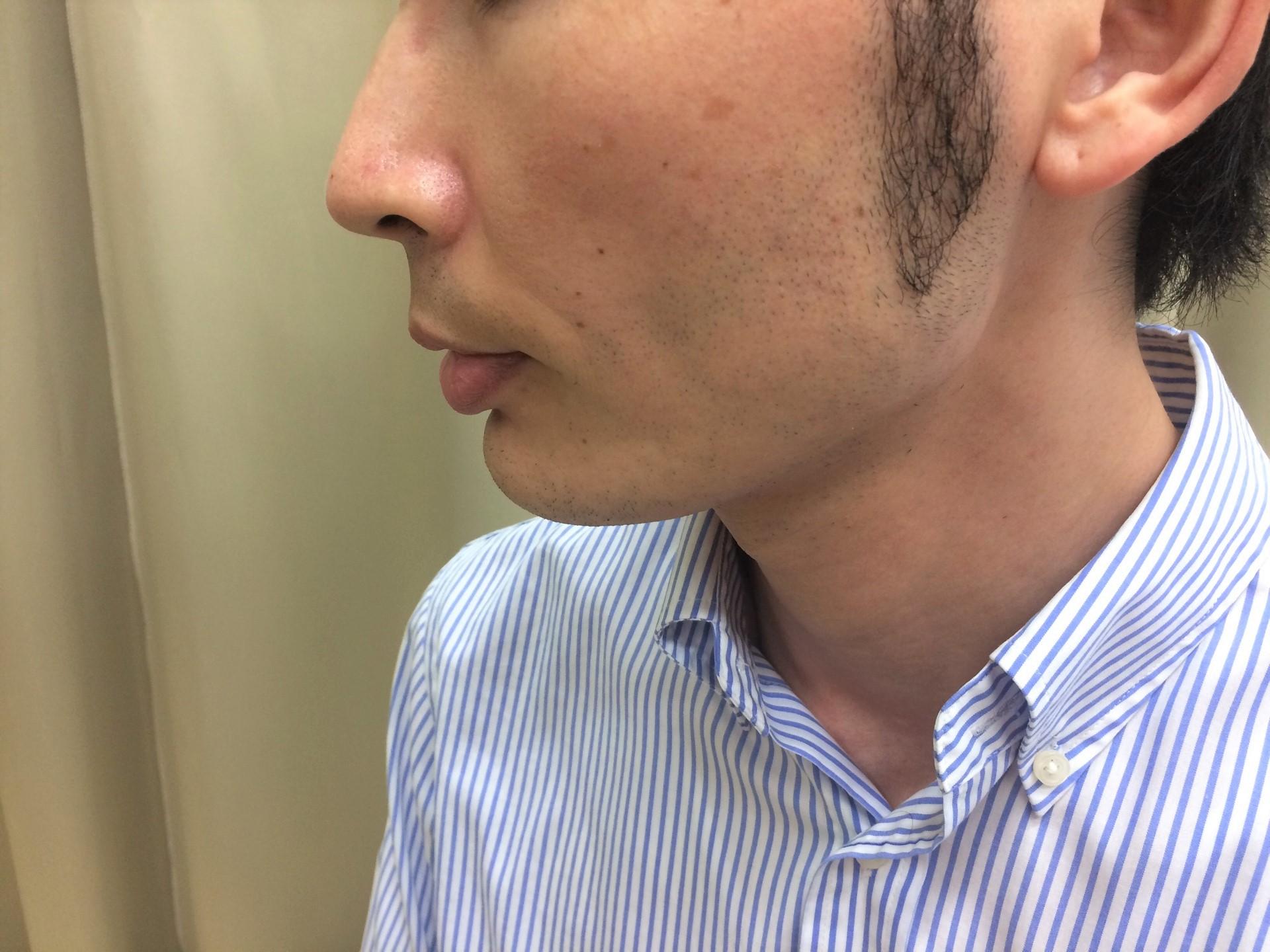 http://iryowriter.net/2019/08/25/【頬ひげ脱毛】わずか2回の施術でほとんど生えな/