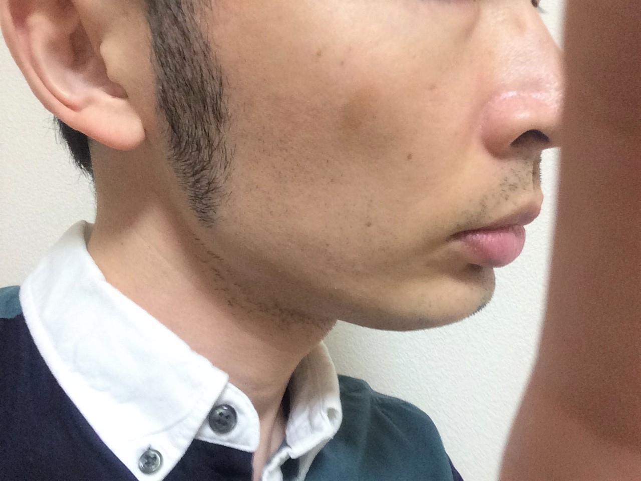 頬ひげ脱毛4回目の効果