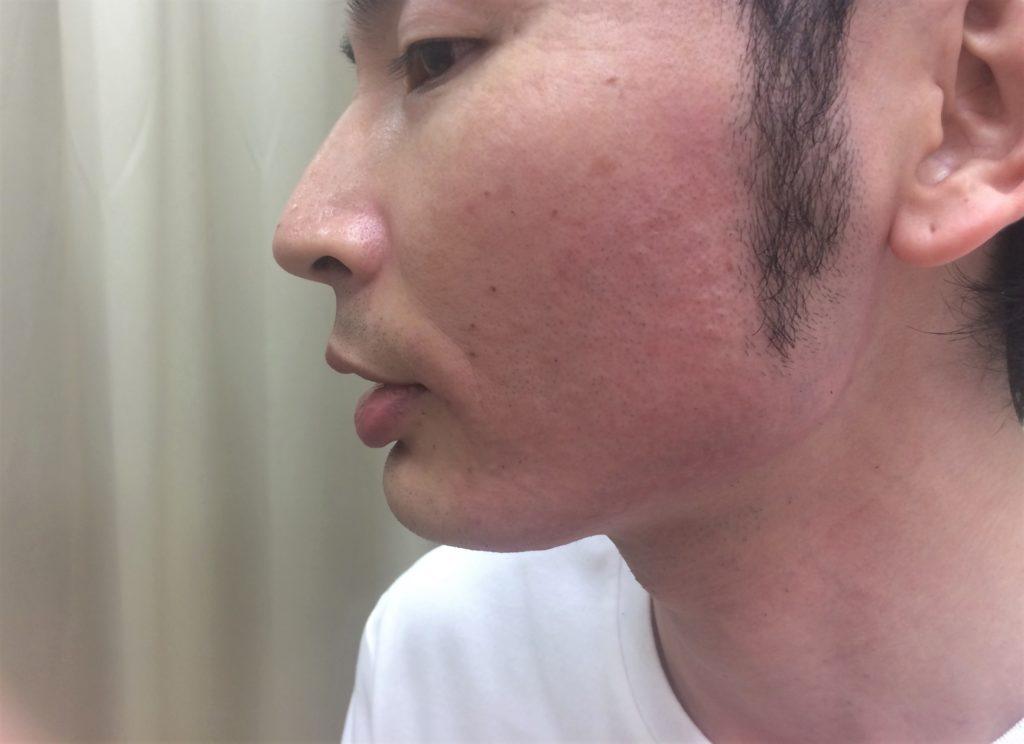 頬ひげ脱毛4回目の施術後