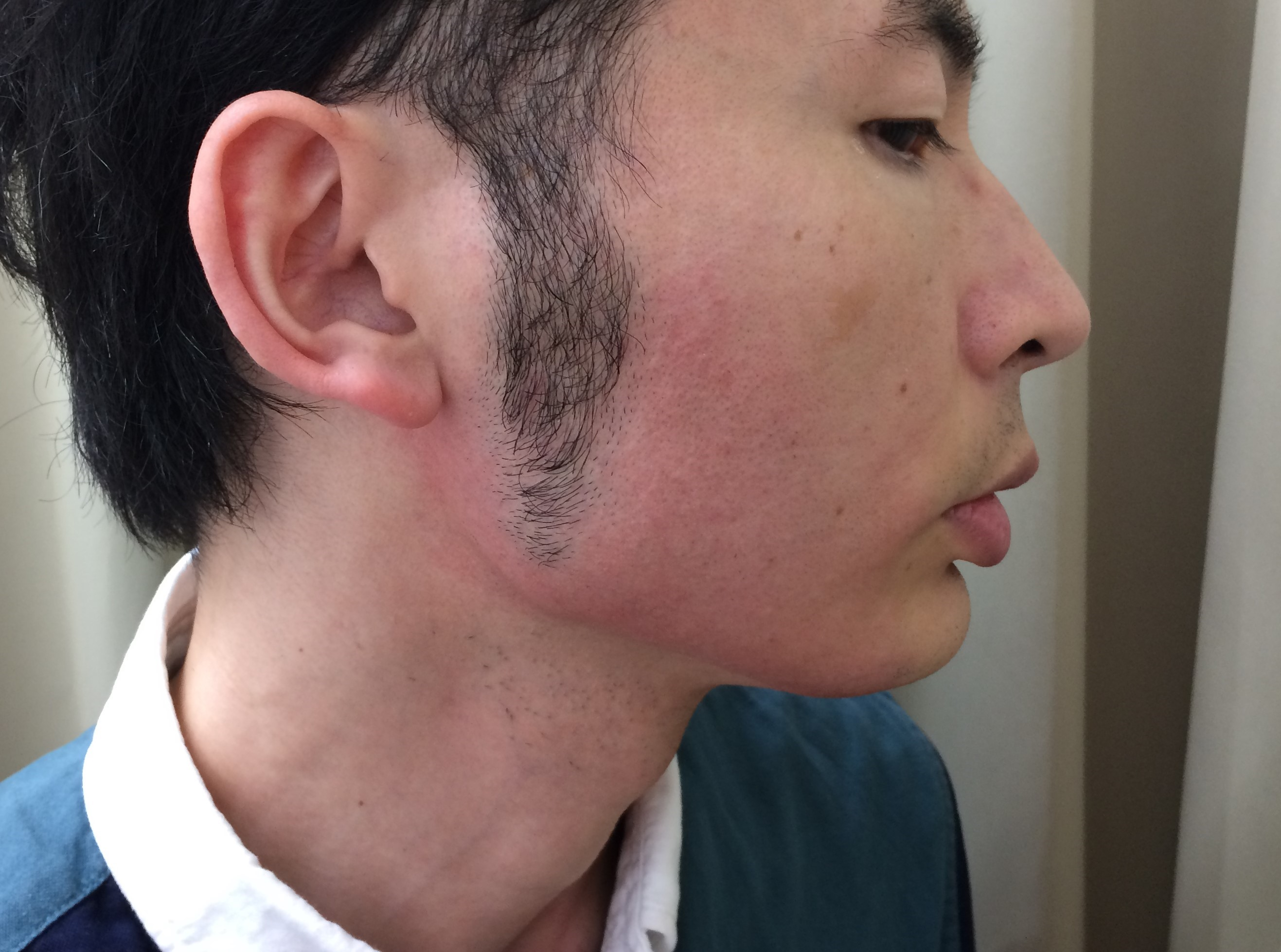 頬ひげ脱毛5回目の施術後