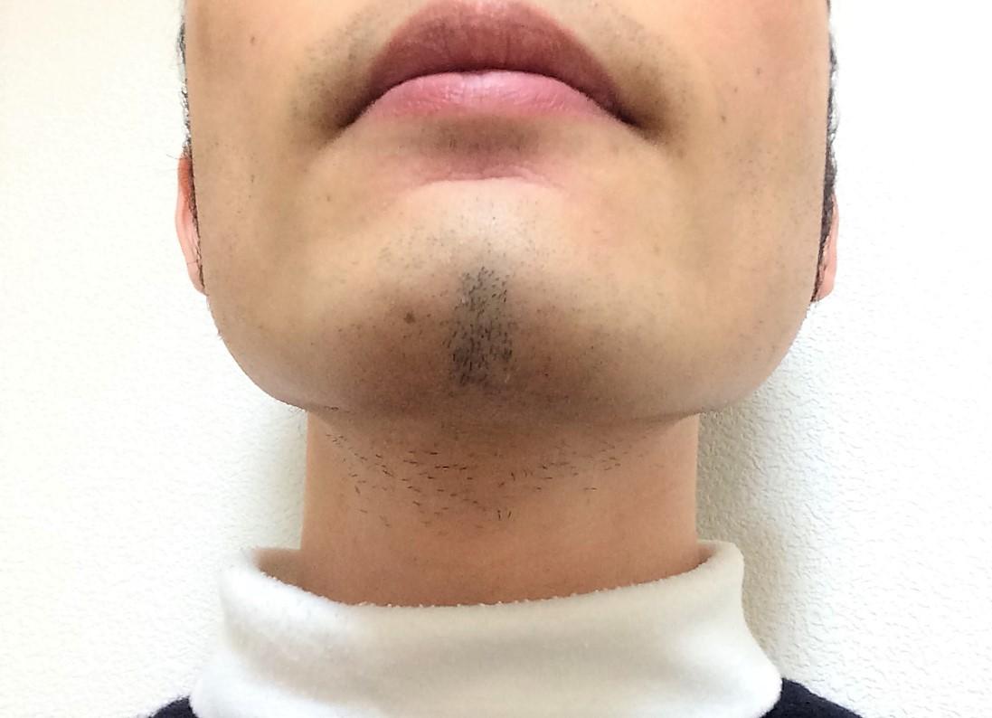 ひげ脱毛10回目の効果