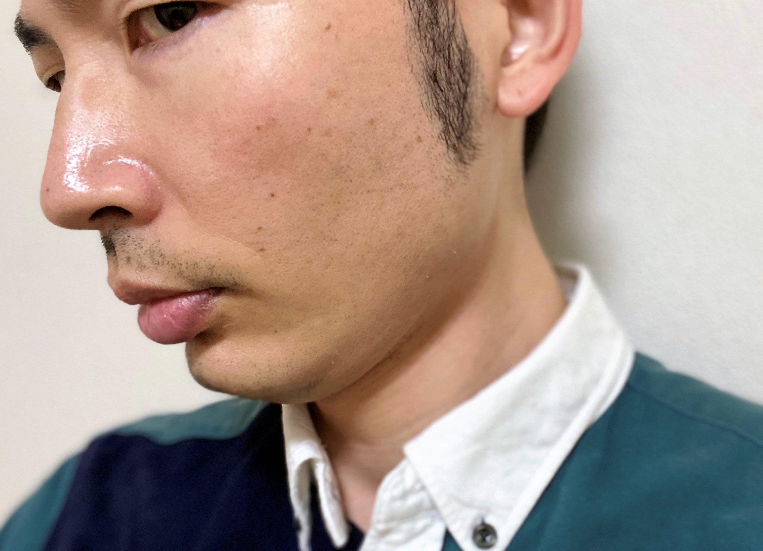 頬ヒゲ脱毛6回目の効果