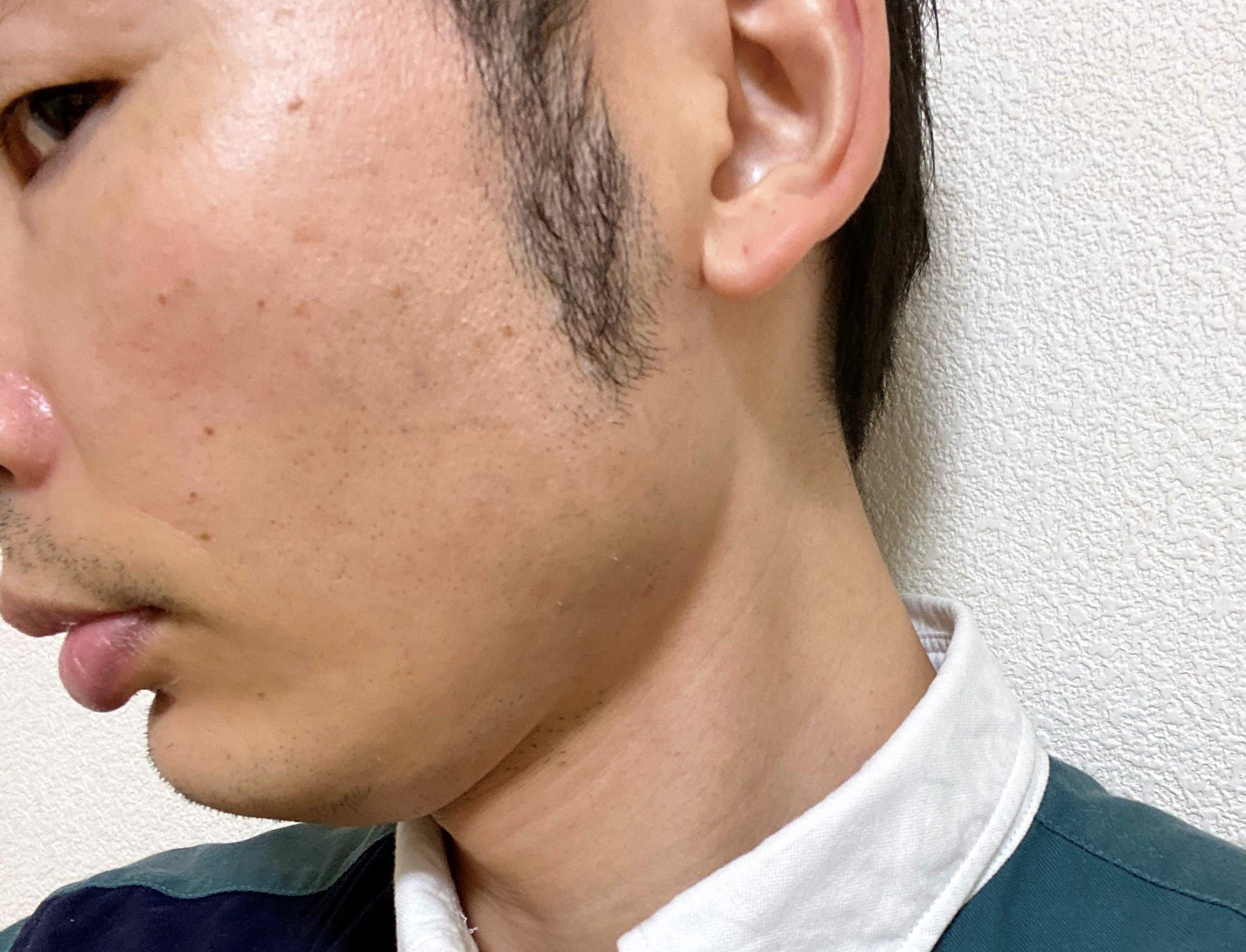 頬ひげ脱毛6回目効果