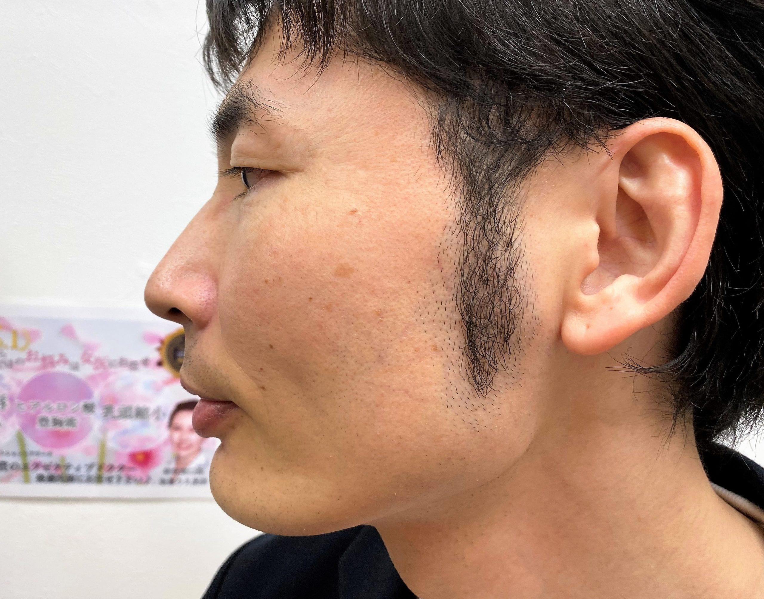頬ひげ脱毛6回目施術前