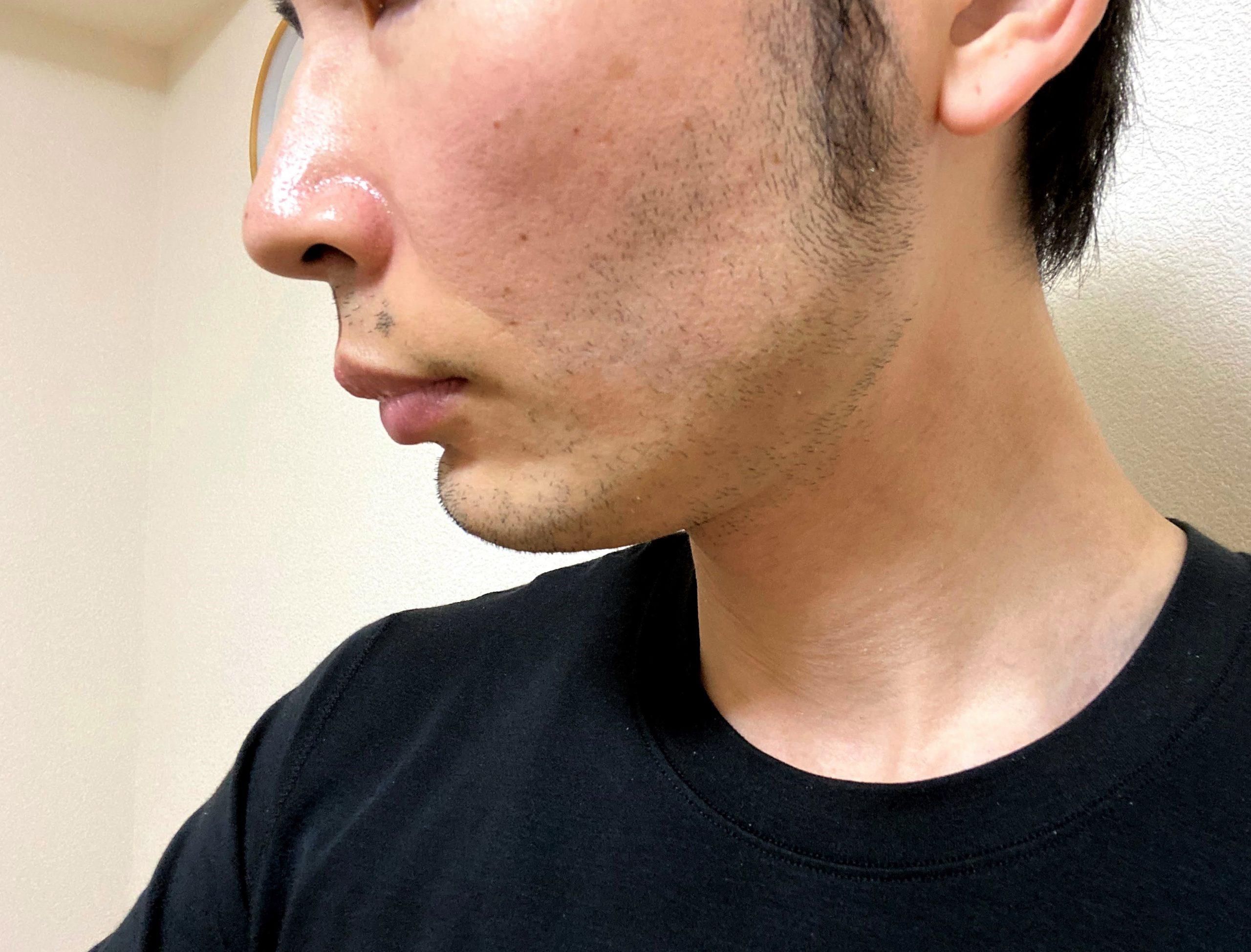 脱毛後に再び生えた頬ヒゲ