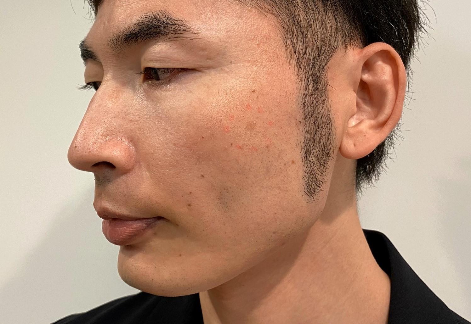 男のシミ取りレーザー治療