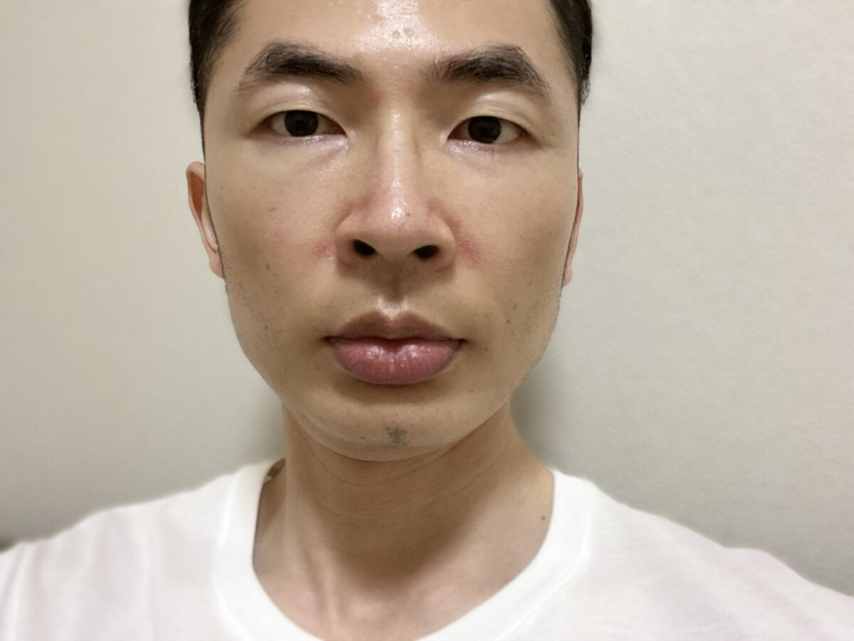 小鼻・眉間の脂漏性皮膚炎