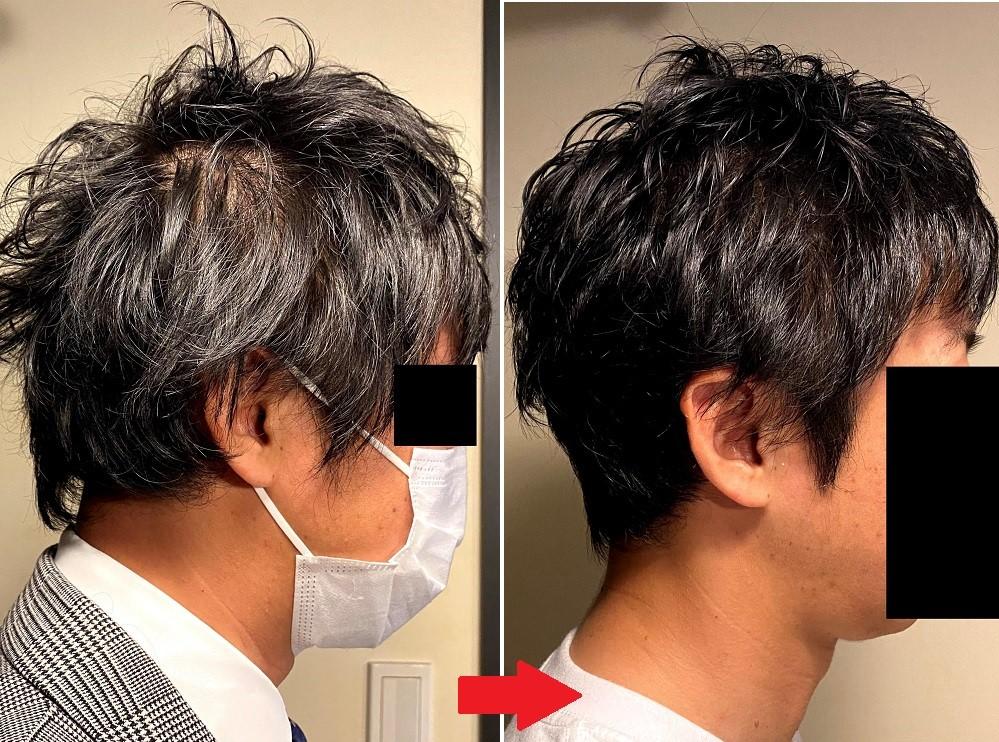 30代男性のAGA治療3カ月後の効果