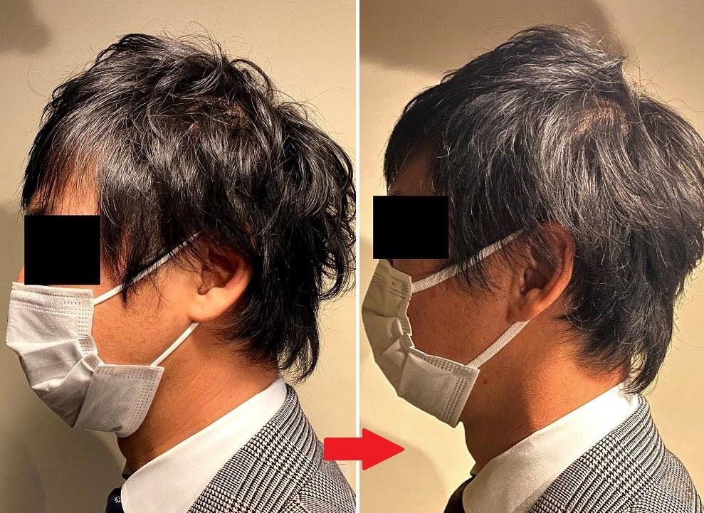 AGA治療1カ月後の変化