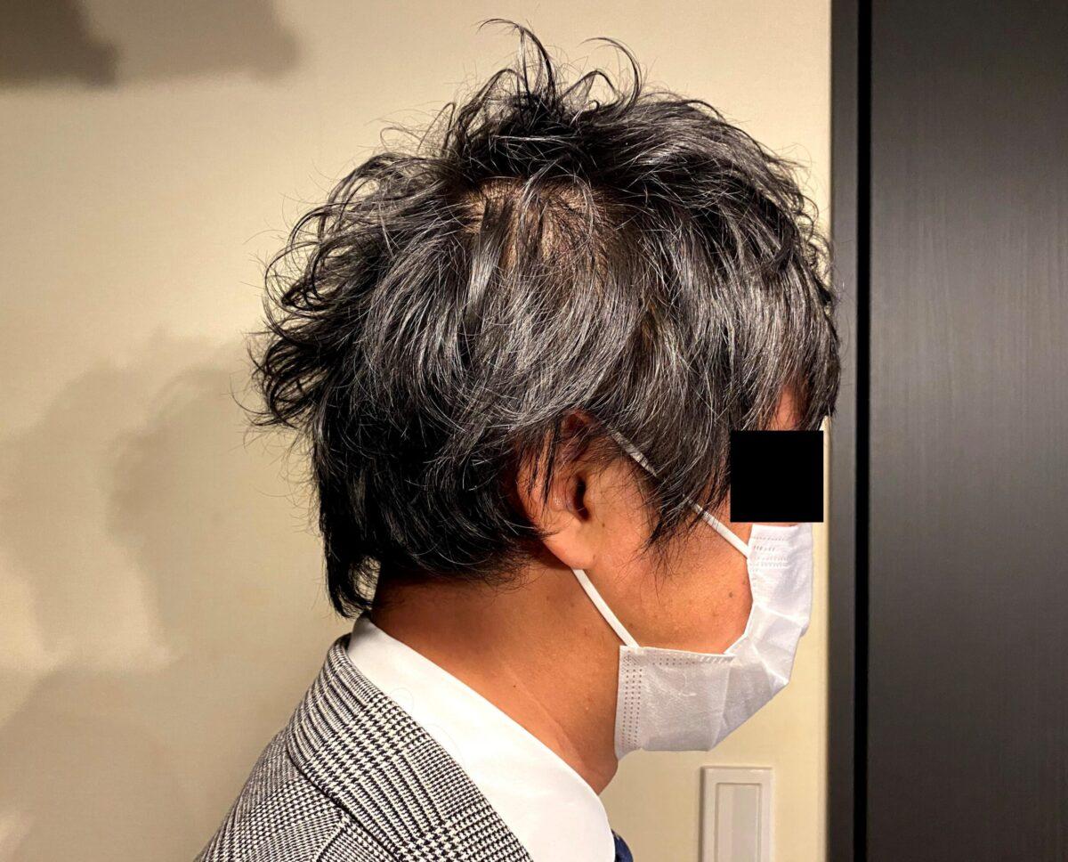AGA治療前の30代男性
