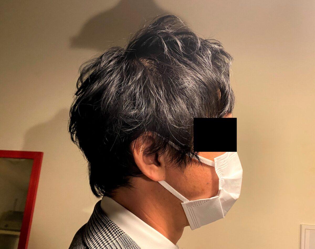 AGA治療1カ月後の30代男性