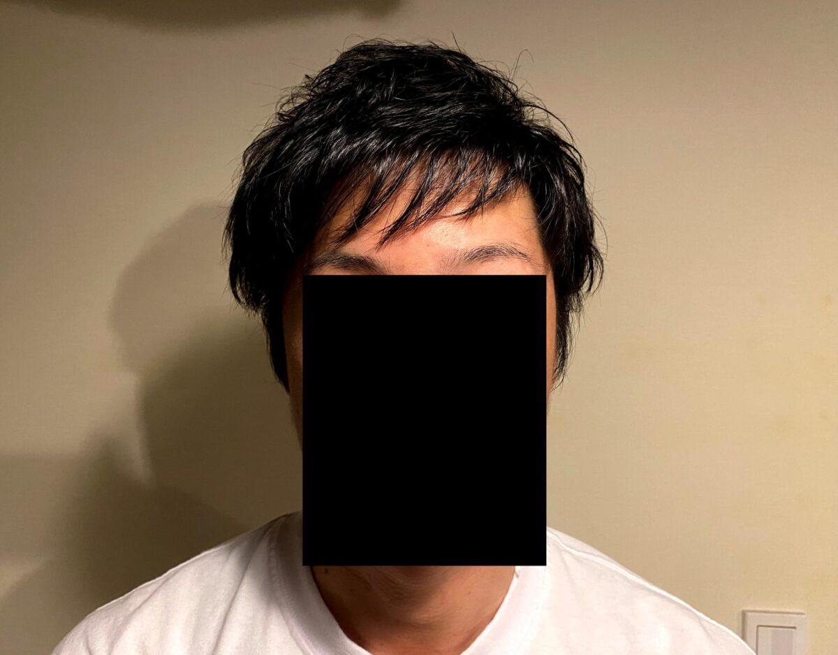 30代男性がAGA治療を始めて3カ月後の効果