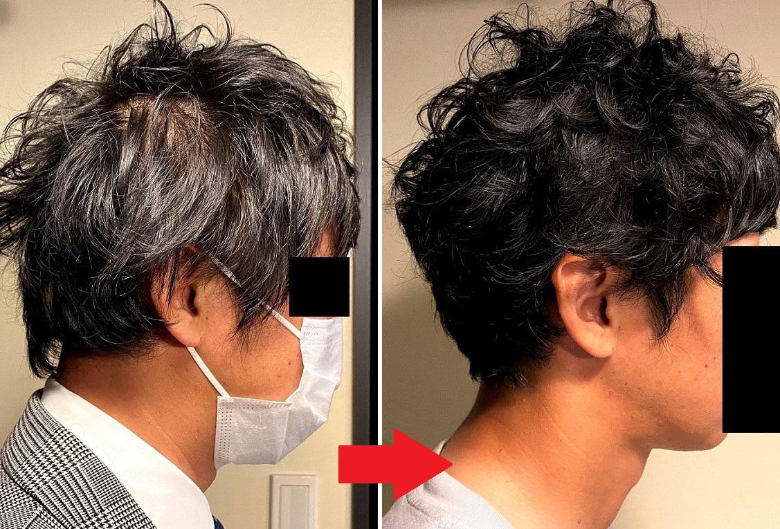 AGA治療前とAGA治療を止めて2カ月後の状態